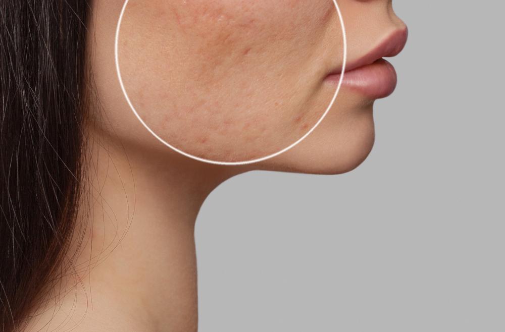 3. Dermatologia